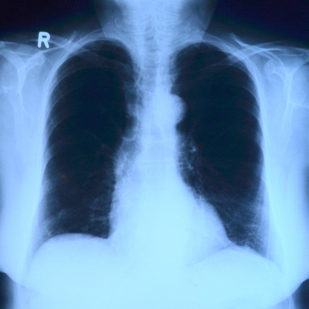 ΧΑΠ (Χρόνια αποφρακτική πνευμονοπάθεια)
